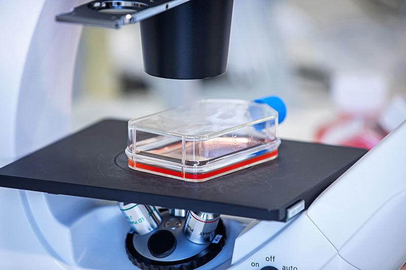 Tenofovir-Microscoop